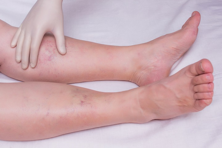 a visszerek miatt a lábak megduzzadnak