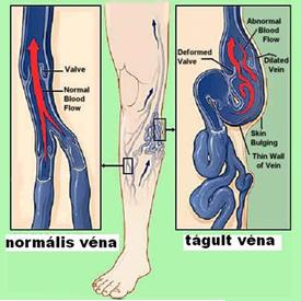 visszérrel a csont fáj visszerek a lábakon felnőtteknél