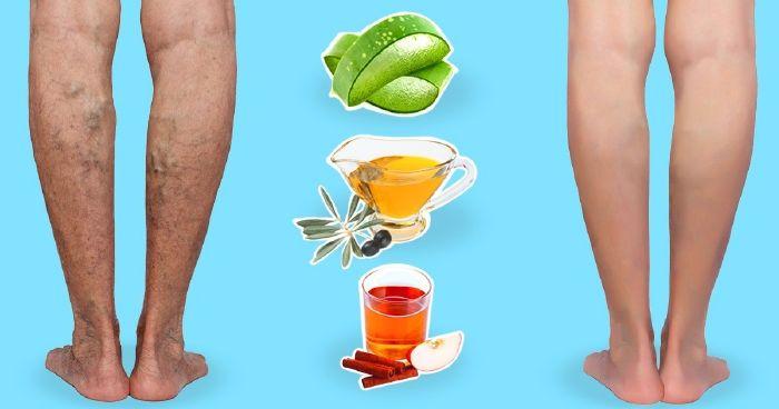 visszér a lábakon ecettel