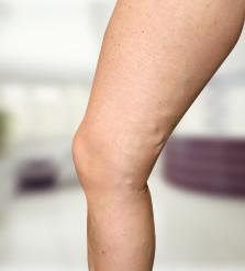 rend a műtét után a varikózisos lábakra