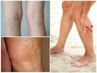 Dr. Naumov visszér kezelése gyógyulás a visszeres műtét után a lábán