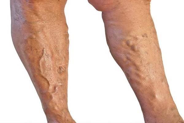mi a visszér a lábakon tünetek mennyi ideig kell viselni a visszér harisnyáját