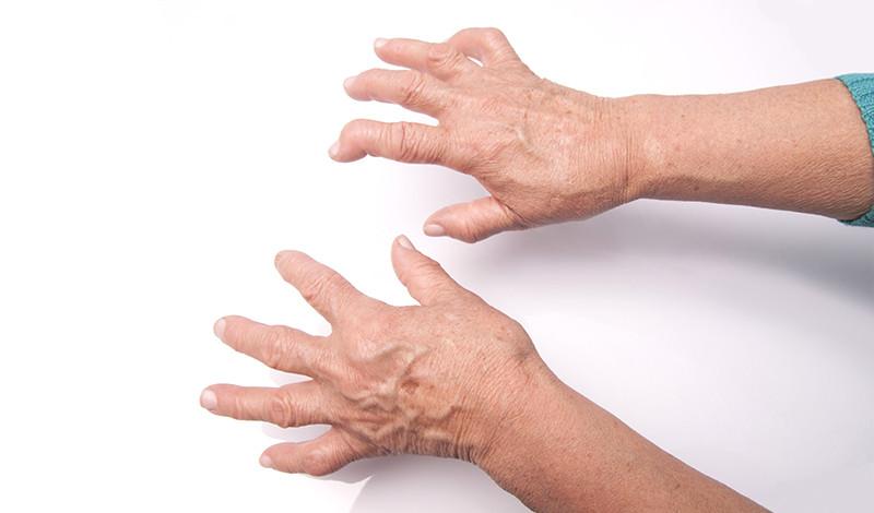 gyógyíthatatlan visszérbetegség a kismedencei varikózis kezelésének tünetei