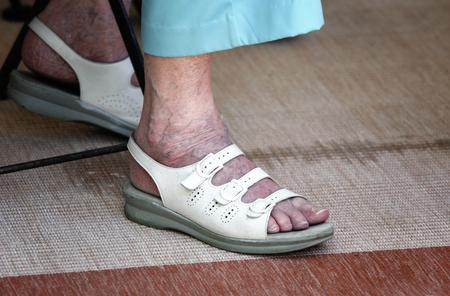 a varikózis kezdete a lábakon