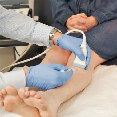 hogyan kell kezelni a visszér orvosok nélkül népi kenőcsök a visszér kezelésére