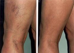 injekciók a lábakban a visszér eltávolítására