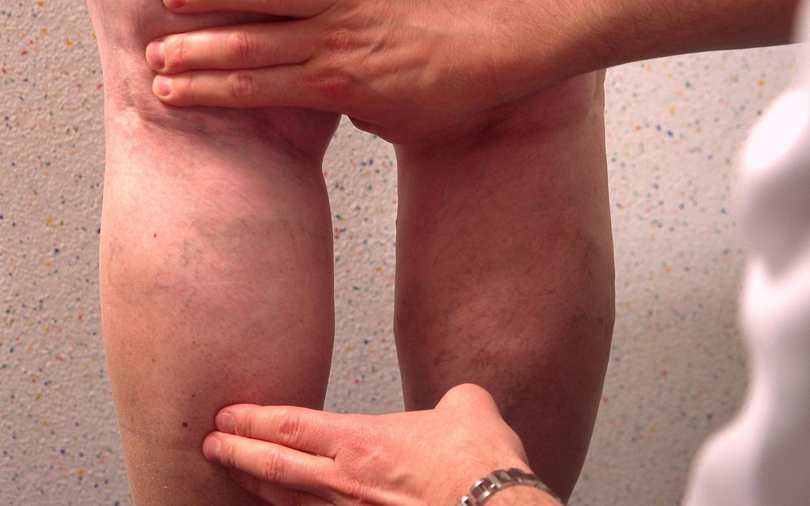 a visszér kezdeti szakasza a lábakon fotó