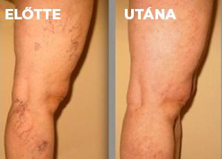 körömvirág visszér kezelés lézer az alsó végtagok varikózisának kezelésében