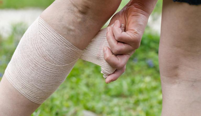 népi gyógymódok a visszerek ellen a kezeken Töltenek-e műtét után a visszerek