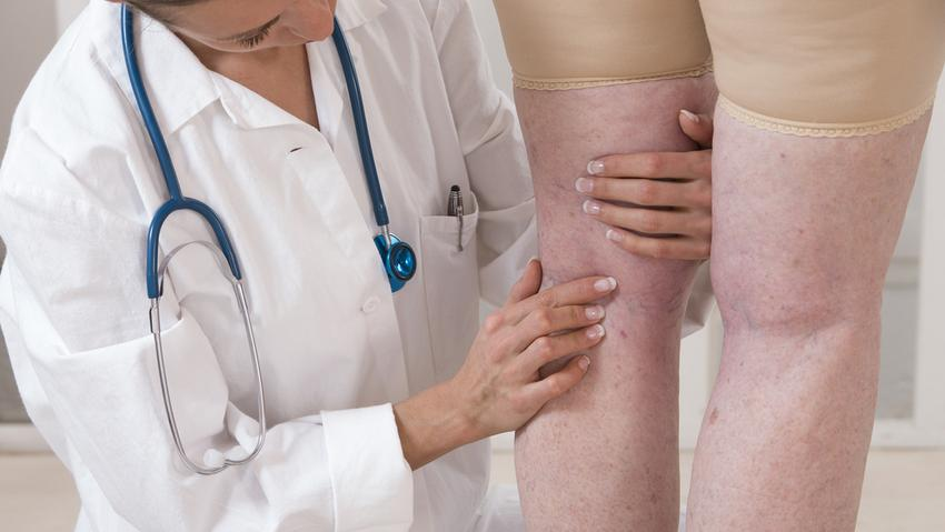 térdig érő varikózis méretek a legjobb krém a lábak visszér ellen