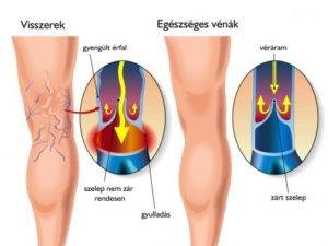 a varikózis oka a lábon