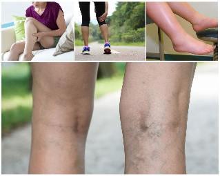 mit kell kezdeni a visszérrel a lábakon