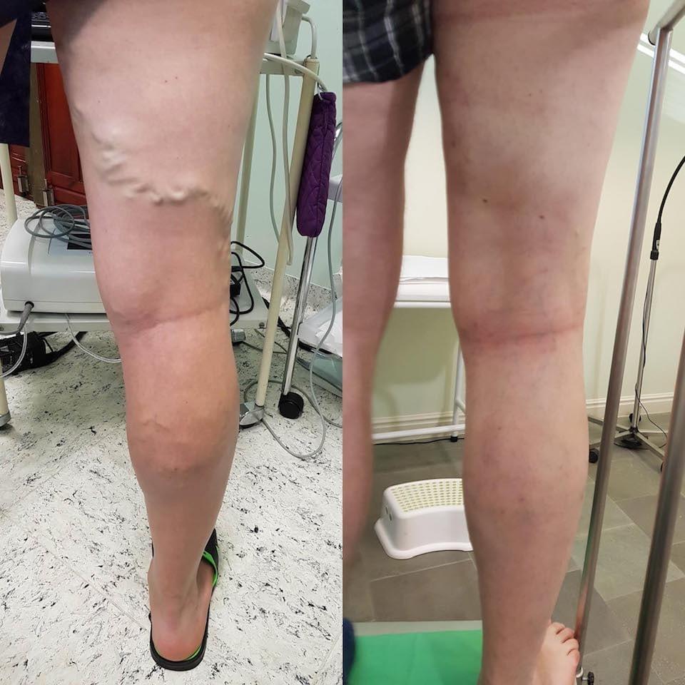műtét utáni következmények a visszeres lábakon