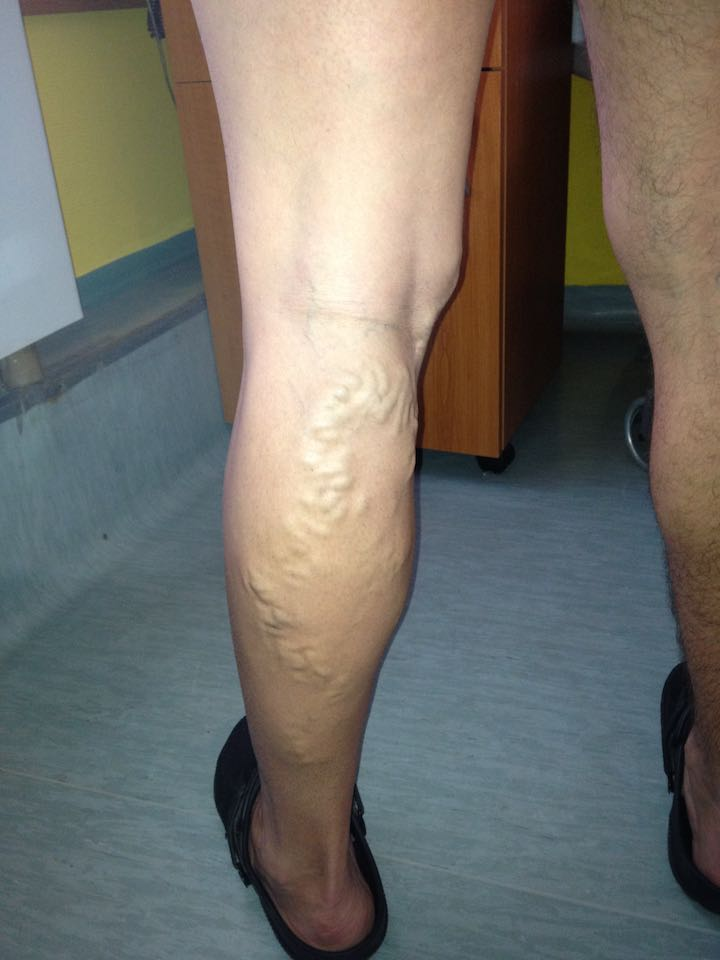 műtét visszér két lábon láb visszér kezelés krém