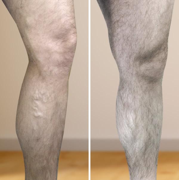 ortopéd térdmagasság visszér ellen visszér kezelése a lábakon műtét