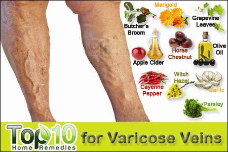 ricinusolaj visszér kezelése a lábak visszér kezelésének legújabb módszerei