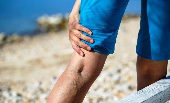 visszér a lábakon kezelés illóolajokkal akit piócák gyógyítottak meg a varikózisban