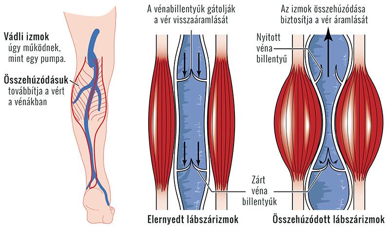 a láb visszérrel kiszárad visszér kompressziós fehérnemű