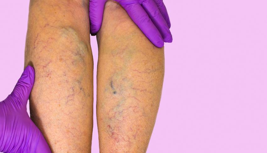 íves erek visszér visszér a lábakon injekciók vélemények