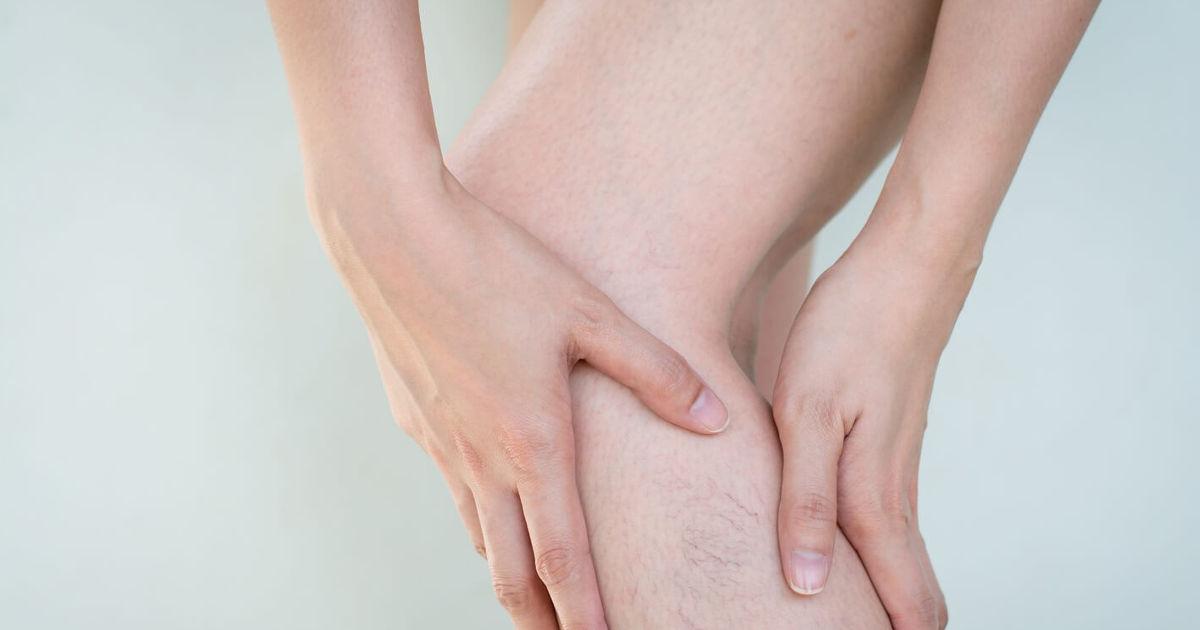 visszérgyulladás thrombophlebitis fekély
