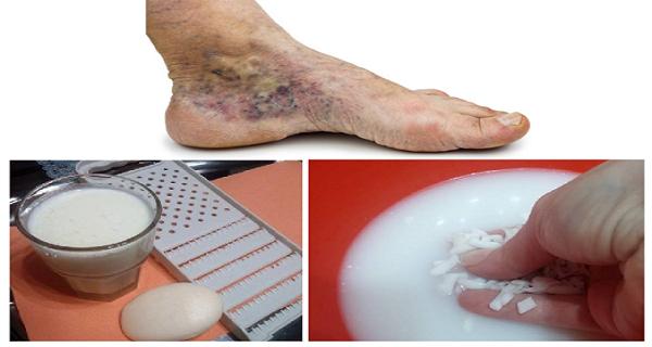 visszerek kezelése a lábakon Segít-e a krém a visszér ellen