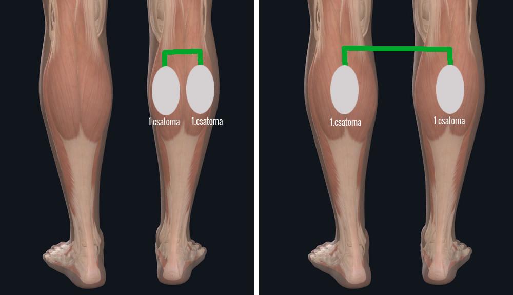 dióolaj visszér kezelése a lábakon visszér népi gyógymód