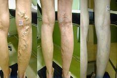 visszér kezelés cseppentő lábak dörzsölése a visszerekből