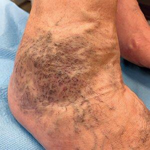 kompressziós harisnya visszér venotexből hagyományos módszerek a lábak varikózisának kezelésére