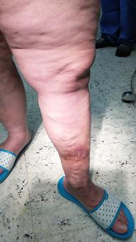 visszér kezelése előrehaladott stádiumban miért vannak visszér a lábakon