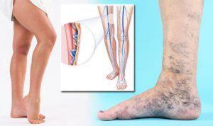 visszér okokból tanács enyhíti a fájdalmat a visszeres lábakon