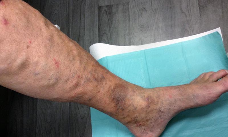 visszér és foltok a lábon