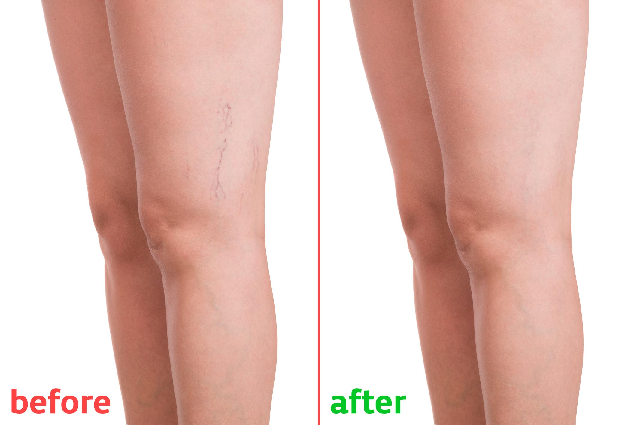 a lábak varikózisának kezelése terhesség alatt