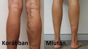 égő az alsó lábszáron visszeres hajdina diéta és visszér