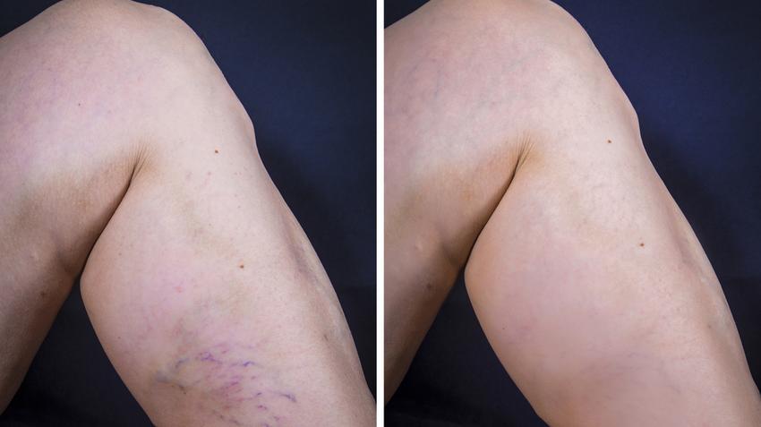 hatékony gyógymódok a visszerek a lábakon aloe elleni gyógyszer visszér ellen