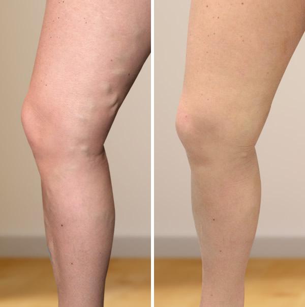 Alsó végtagok varicose betegsége 2 fokos fénykép