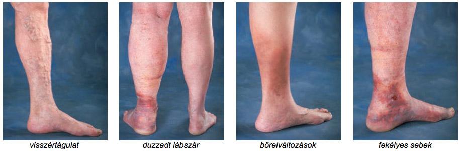 az alsó végtagok visszérének hagyományos kezelési módja láb visszér műtét árak
