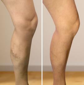 visszerek a műtétek előtt és után