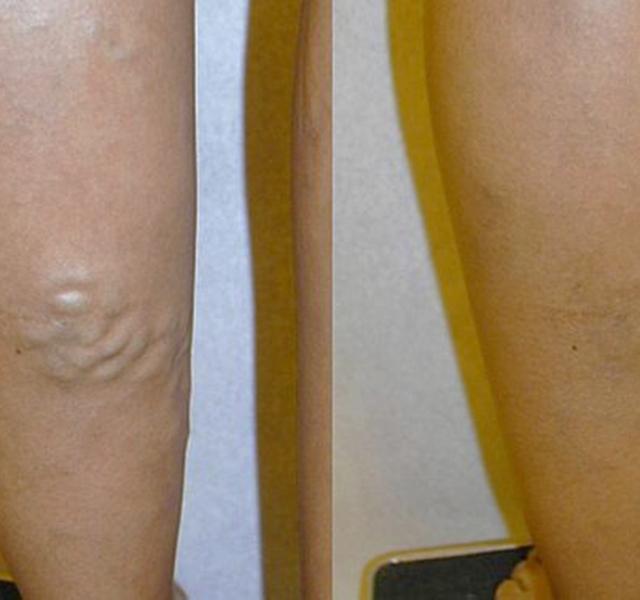 a visszerek megelőzése a lábakban táplálkozás norbekov szerint gyógyított visszér