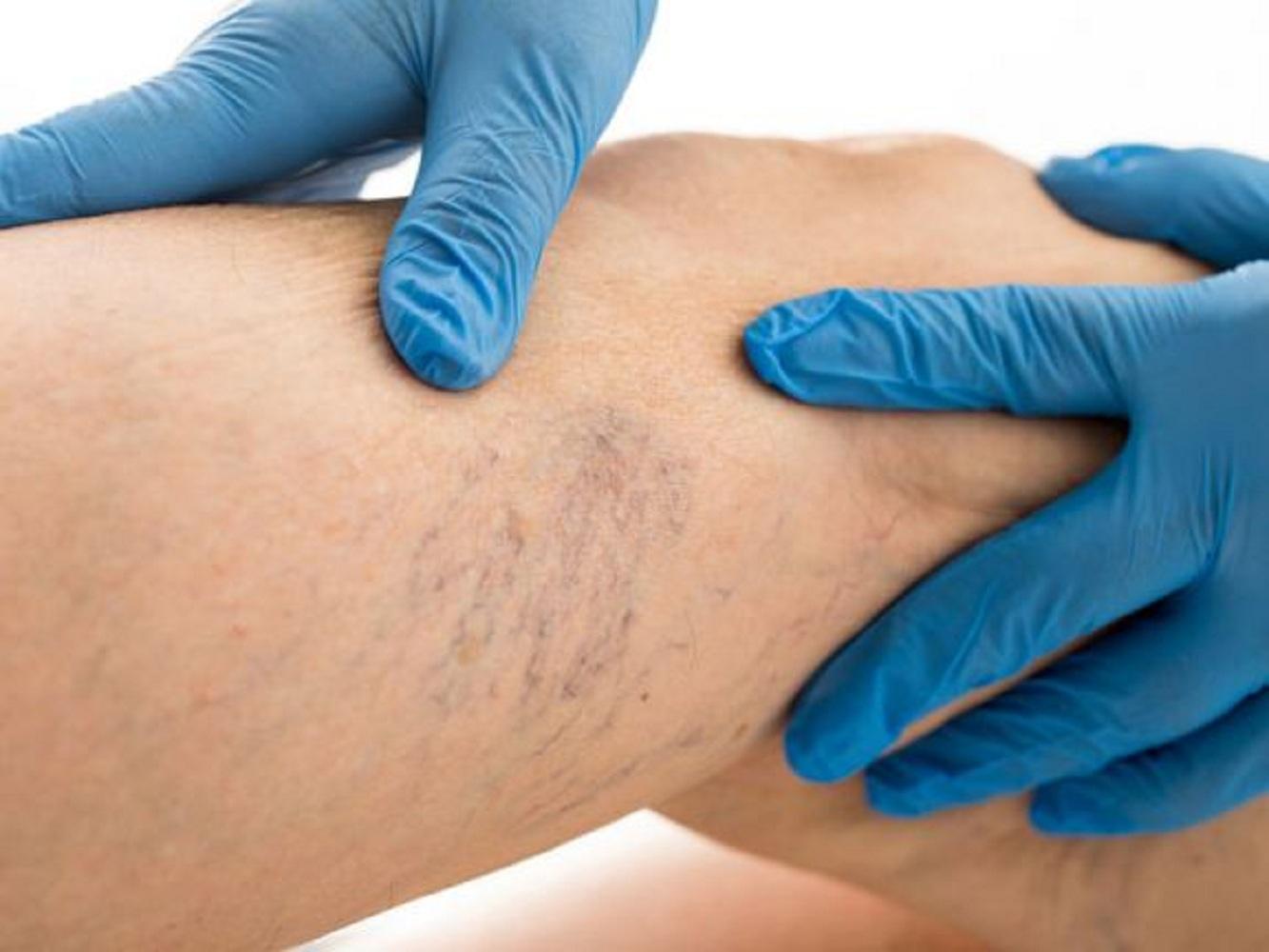 nyirokelvezetés és visszeres eljárás visszér a lábakban hogyan kell kezelni