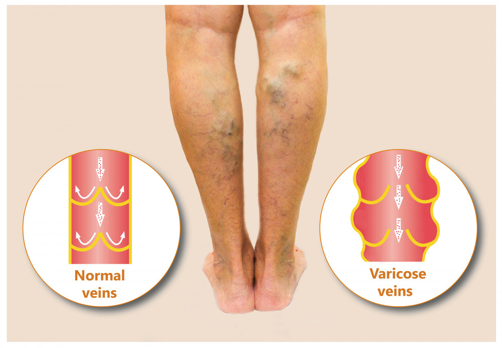 enyhíti a fájdalmat a visszeres lábakon