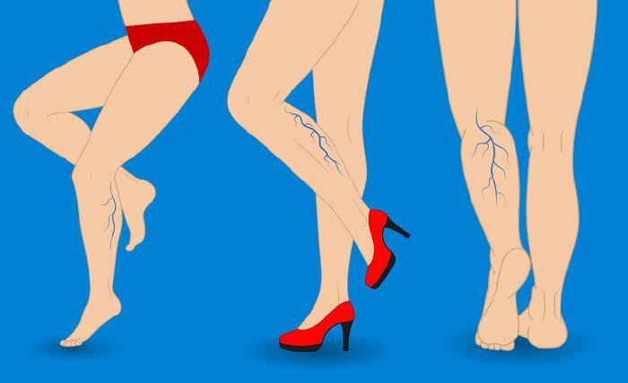 visszér bekötözi a lábakat vélemények, akik lézerrel távolították el a visszerek
