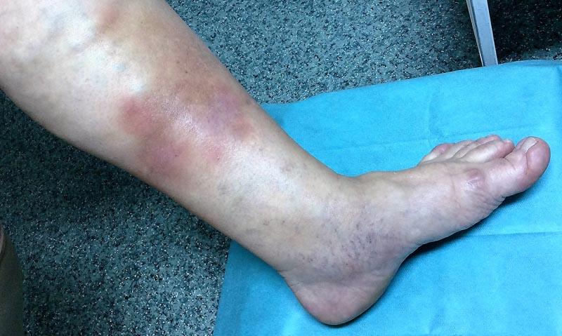 a visszér duzzadt lábai Nikopol visszér kezelés