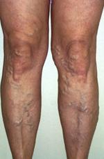 visszér műtéti kezelés árak annál jobb bekenni a lábát visszérrel