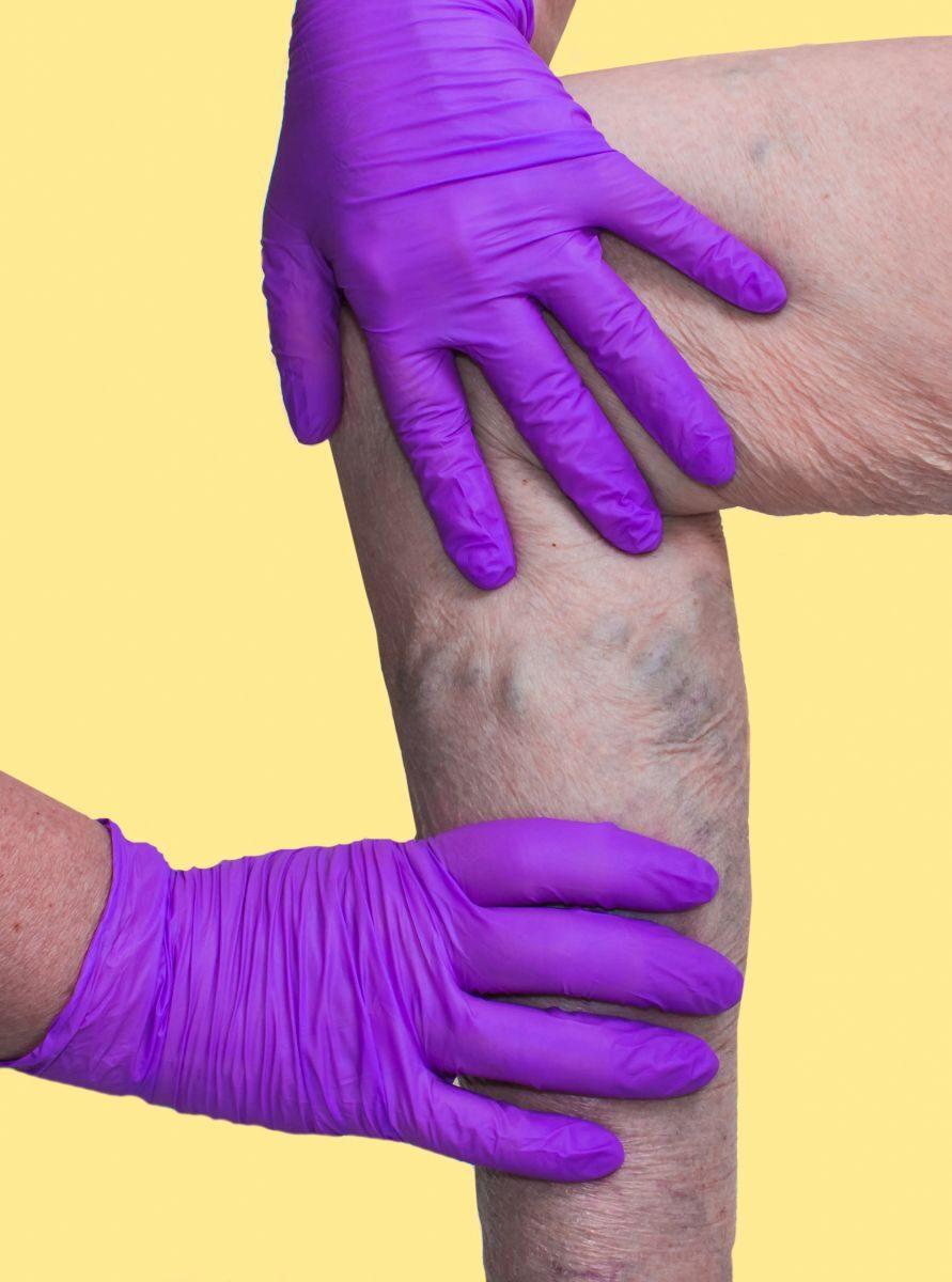 visszér a férfiak kezén fotó A visszér karaganda kezelése