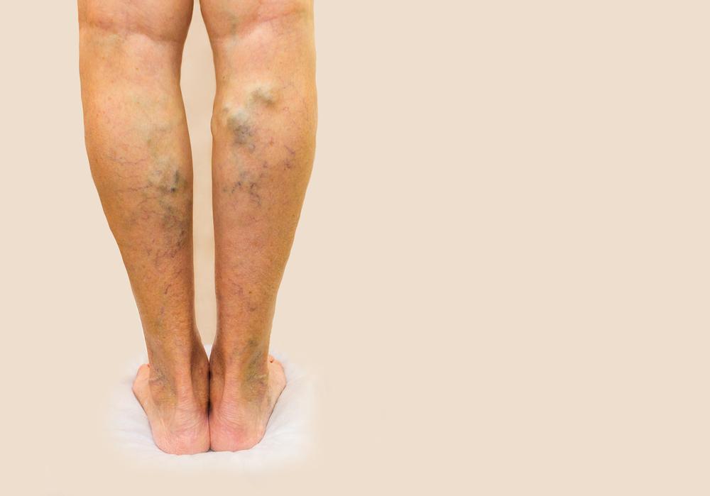 lábak visszérműtét után
