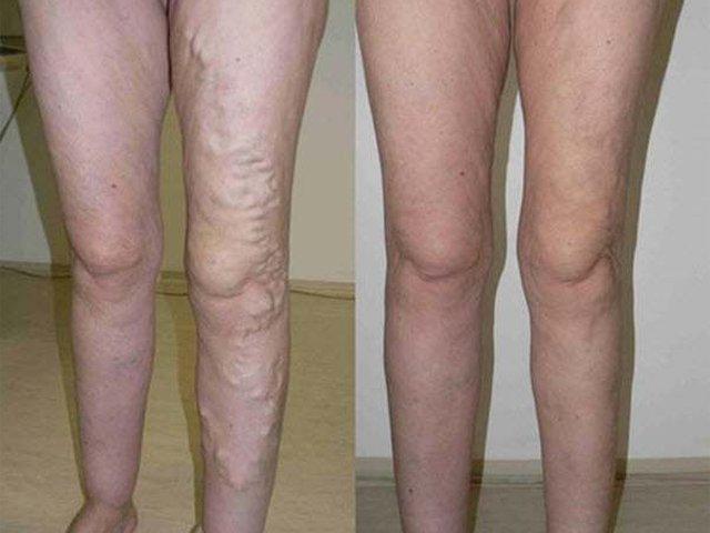 hagyományos orvoslás a visszér visszér a lábakon