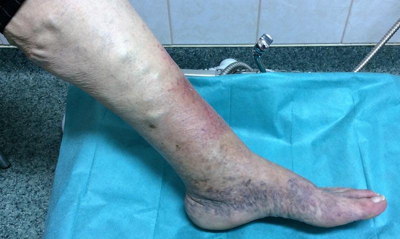fényképet egy visszeres lábról a visszér lézeres kezelése Asztrakhan