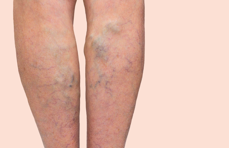 allergia és visszér