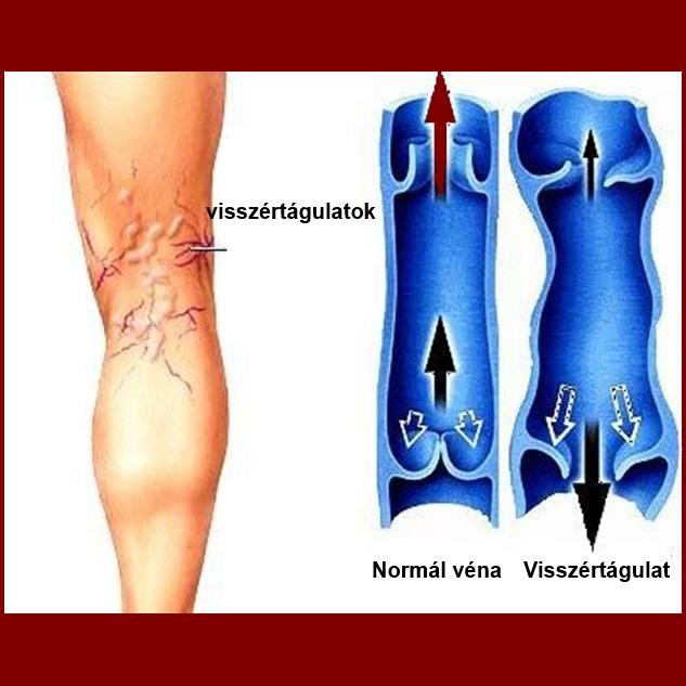 miért jelentek meg a visszér hogyan lehet bekötözni a lábát a visszeres műtét után