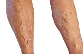 érinti-e a visszér a lábakat
